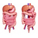 Питание при синдроме короткой кишки